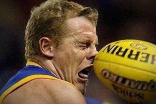 Ball ins Gesicht – das tut weh!