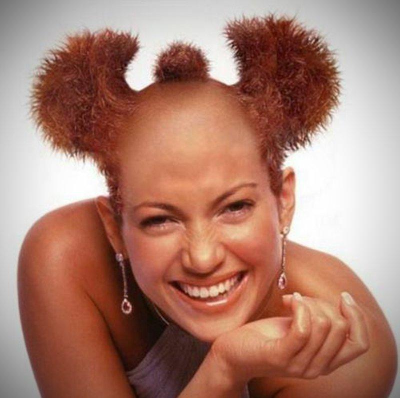 Пересадка волос лечение облысения