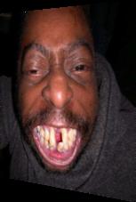 Hässliche Zähne